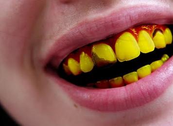 putihkan gigi 6 Petua Putihkan gigi yang kuning.
