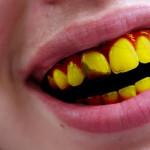 6 Petua Putihkan gigi yang kuning.