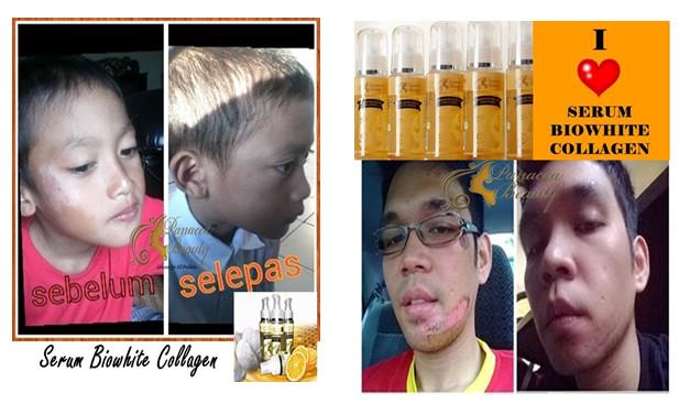 Panacea Beauty Serum Biowhite Collagen